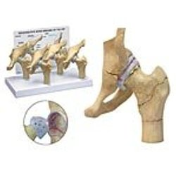 4-stage Arthritic Hip Model Set